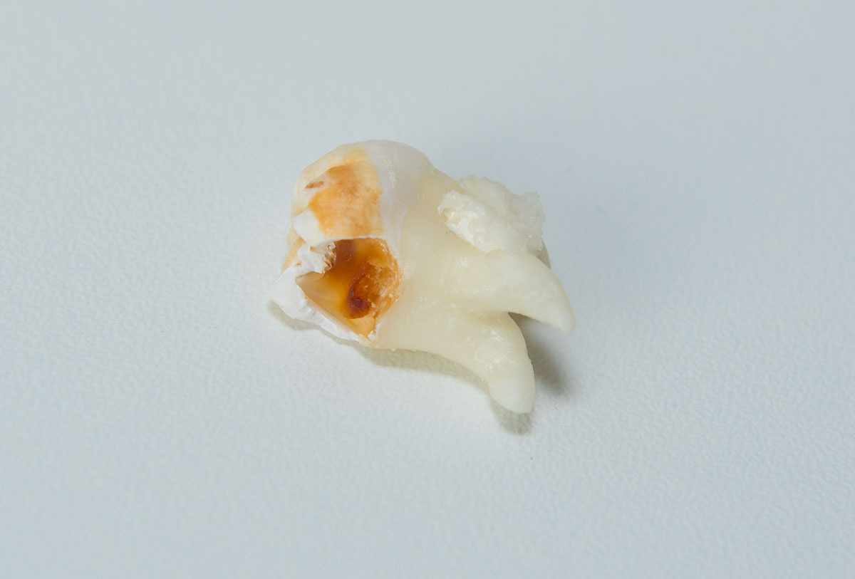 Zahnärztliche Chirurgie